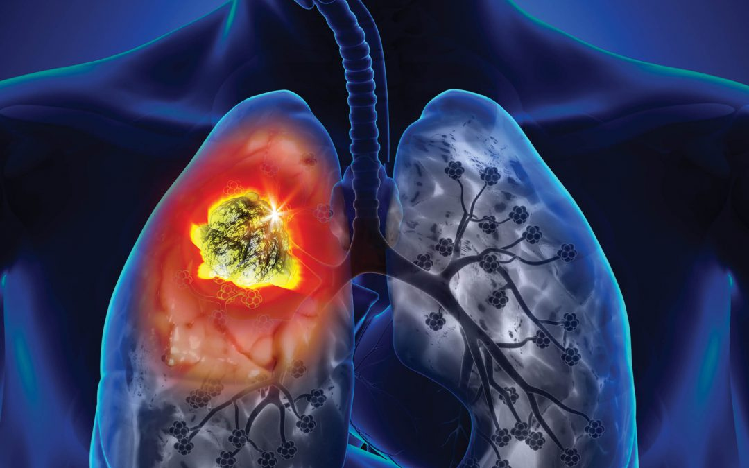 A Three-Dimensional Model of Lung Cancer – Dr Samantha Meenach, University of Rhode Island