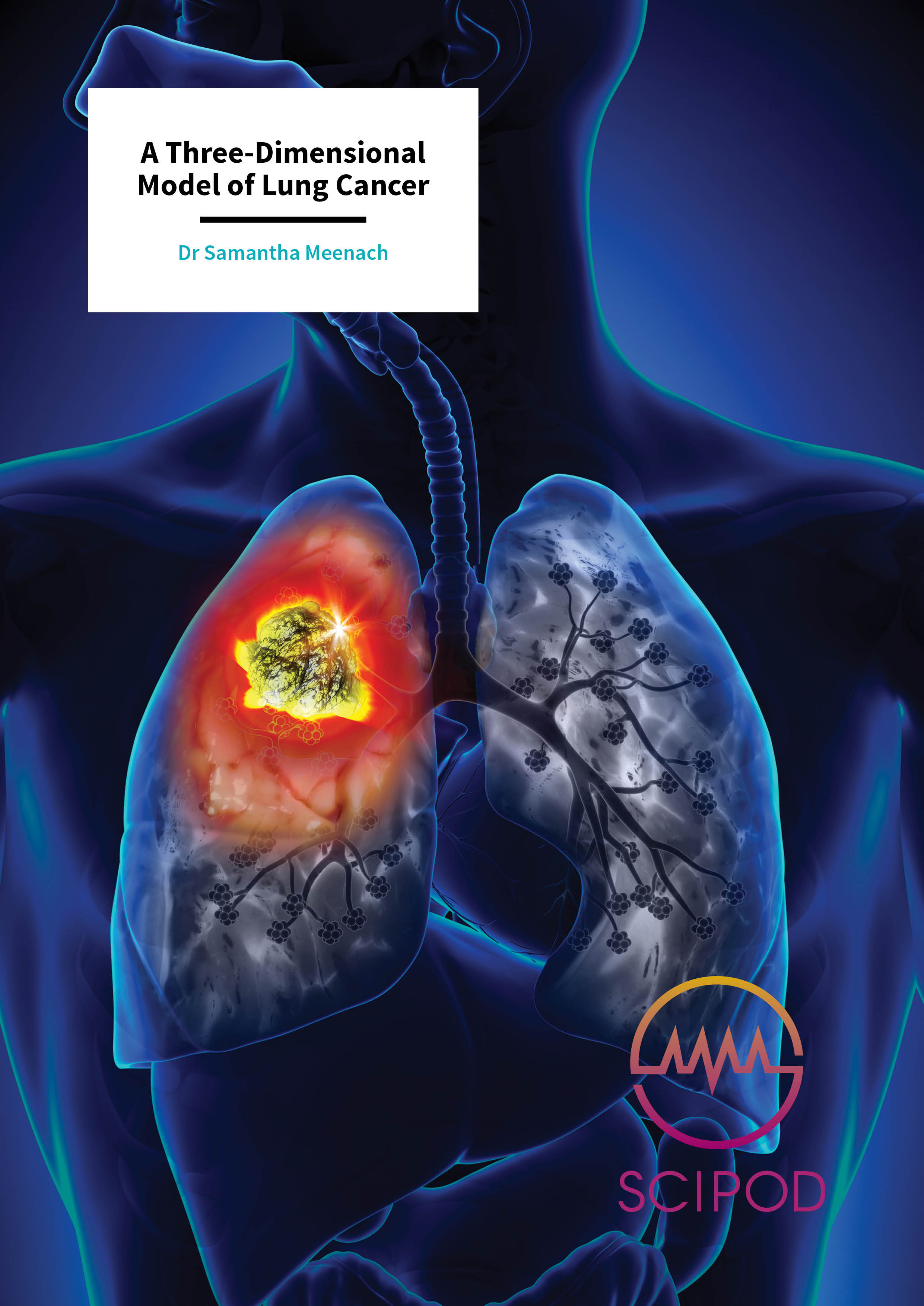 A Three-Dimensional Model of Lung Cancer – Dr Samantha Meenach, University of Rhode Island