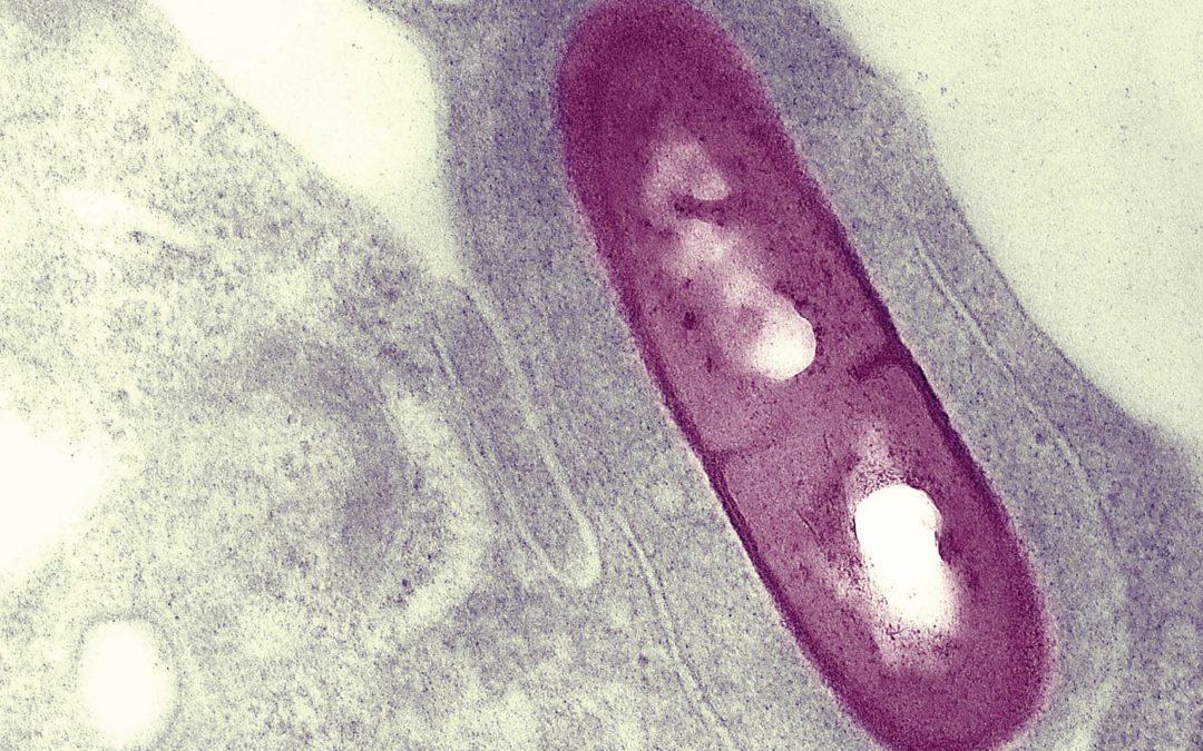 Understanding the Pathogenic Mechanisms of Intracellular Bacteria – Dr Darren Higgins, Harvard Medical School