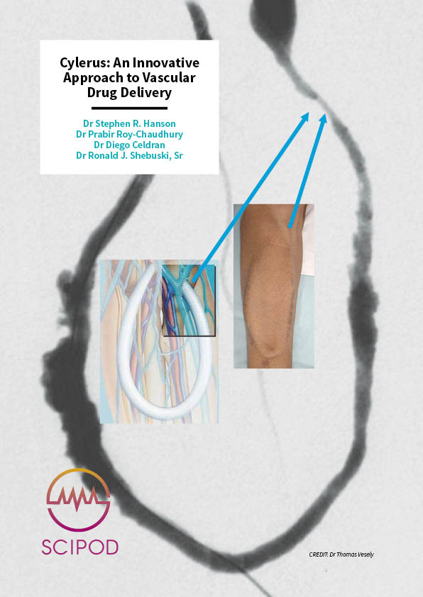An Innovative Approach to Vascular Drug Delivery – Cylerus