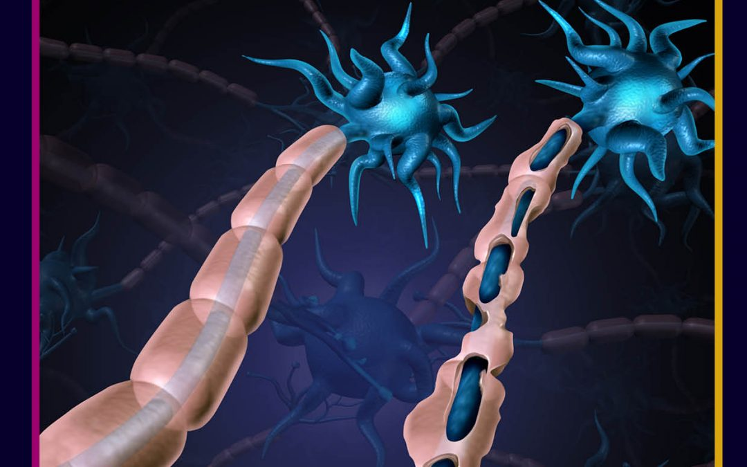 Protected: Multiple Sclerosis Fast Facts