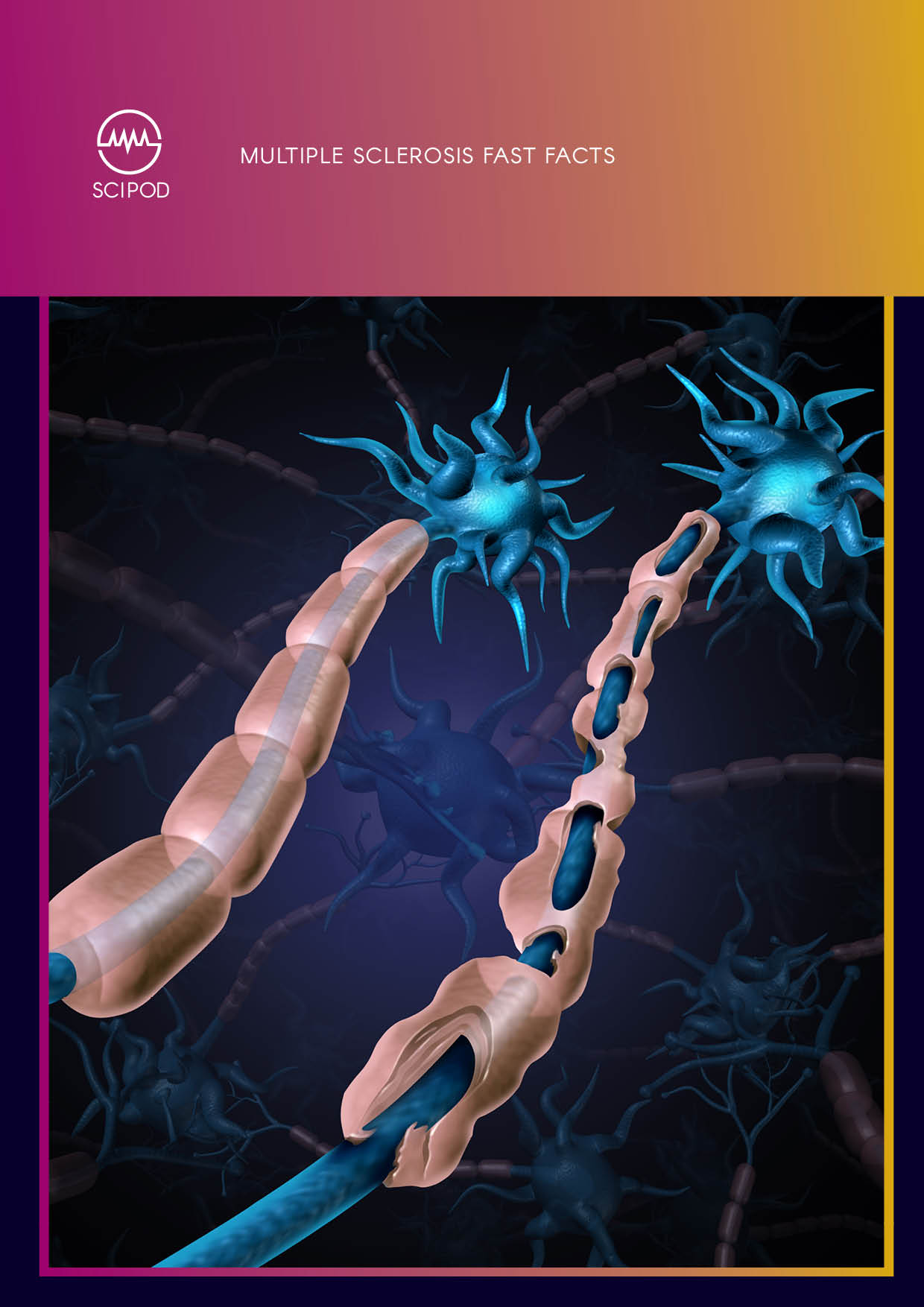 Multiple Sclerosis Fast Facts